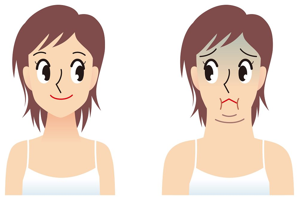 how to get rid of double chin naturally at home