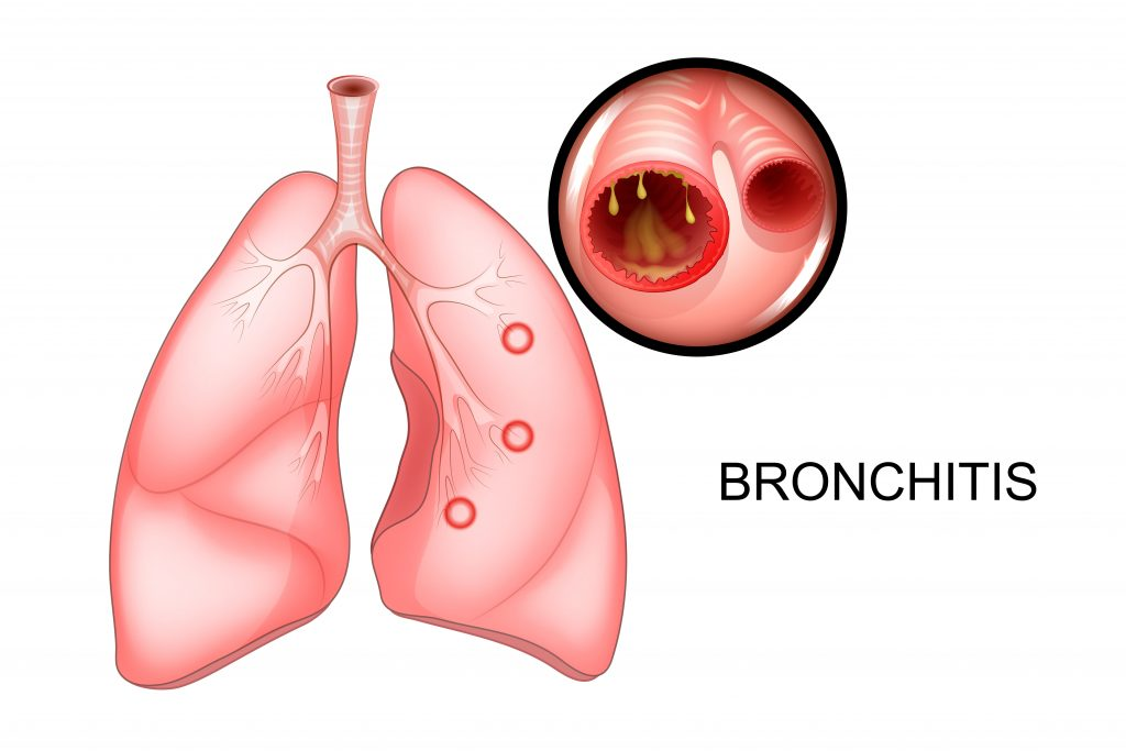 bronchitis research papers Chronic bronchitis and emphysema pathophysiology research paper chronic obstructive pulmonary disease can be defined as a disease state characterized by the presence of airflow obstruction due to chronic bronchitis or emphysema (nice, 2004.